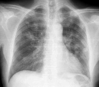 Цифровые рентгенографические системы - Цифровая рентгенография.